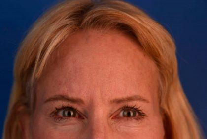 Botox Before & After Patient #400