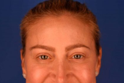Botox Before & After Patient #407