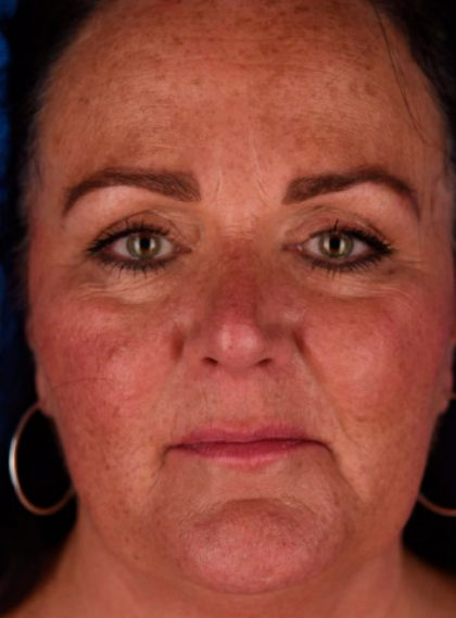 Botox Before & After Patient #681
