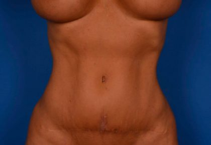 Tummy Tuck Before & After Patient #264