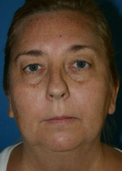 Facial Implants Before & After Patient #2334