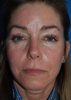 Brow Lift Before & After Patient #2343