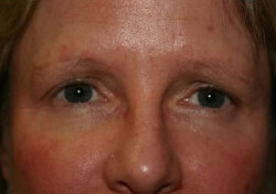 Brow Lift Before & After Patient #2354