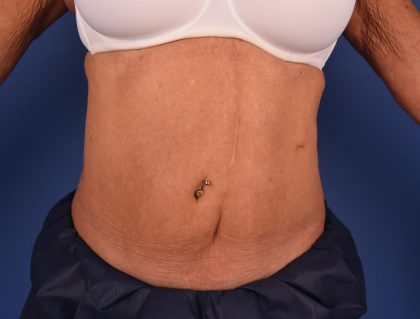 CoolSculpting Before & After Patient #2712