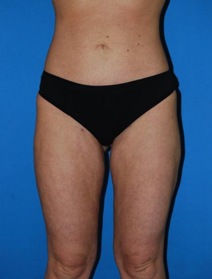 Liposuction Before & After Patient #2859