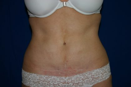 Tummy Tuck Before & After Patient #1998