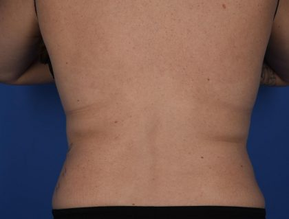 CoolSculpting Before & After Patient #2725