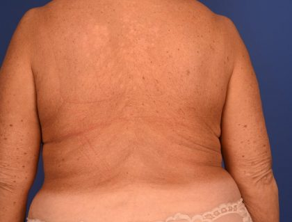 CoolSculpting Before & After Patient #2709
