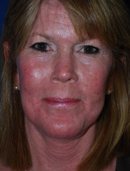 Skin Care Before & After Patient #2784