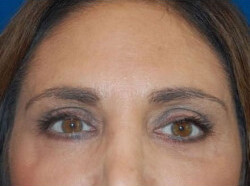 Blepharoplasty Before & After Patient #2116