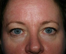 Blepharoplasty Before & After Patient #2123