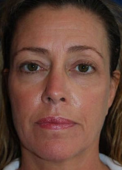 Blepharoplasty Before & After Patient #2130