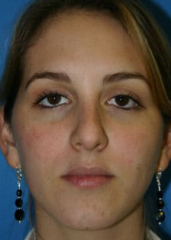 Rhinoplasty Before & After Patient #2660