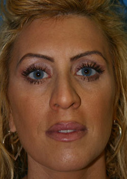 Rhinoplasty Before & After Patient #2671