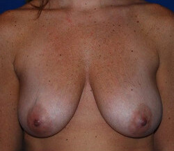 Breast Augmentation Before & After Patient #2273