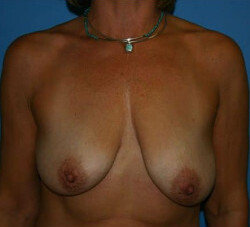Breast Augmentation Before & After Patient #2282