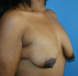 Breast Augmentation Before & After Patient #2289