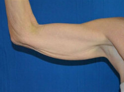 Arm Lift Before & After Patient #2070