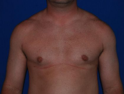 Gynecomastia Before & After Patient #1782