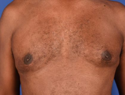 Gynecomastia Before & After Patient #1804