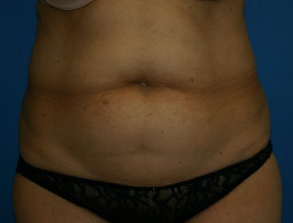 Tummy Tuck Before & After Patient #1929