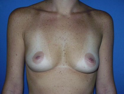 Breast Augmentation Before & After Patient #1612