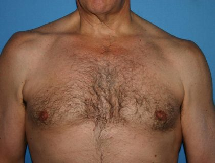 Gynecomastia Before & After Patient #1793