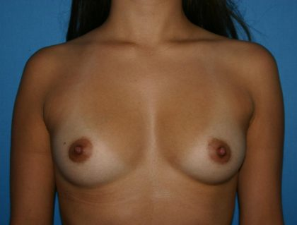 Breast Augmentation Before & After Patient #1623